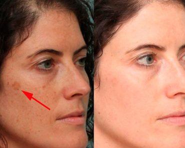5 alimentos que pueden ayudar a eliminar las manchas oscuras de su cara