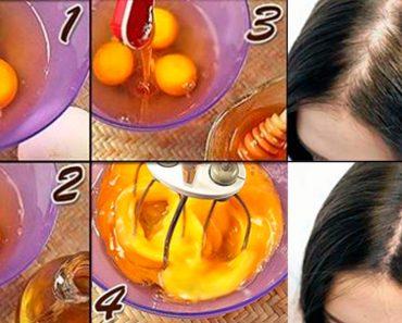 5 maneras fáciles de usar huevos para tratar la pérdida de cabello