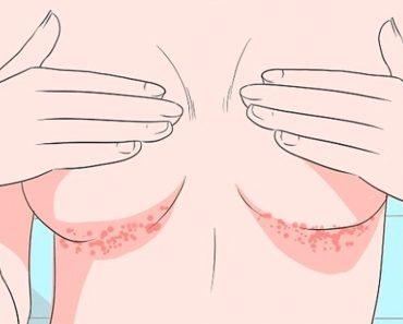 Los 5 mejores remedios para deshacerse de ese sarpullido que pica debajo del pecho
