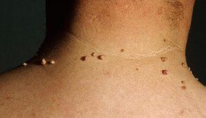 9 remedios naturales para deshacerse de las verrugas de la piel
