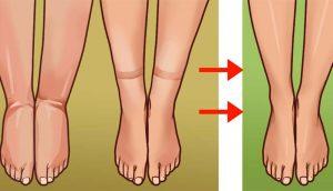 Retención de líquidos (edema): principales causas y cómo solucionarlo naturalmente
