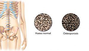 12 Causas de la osteoporosis y la pérdida de hueso que debe saber