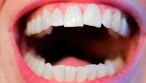 ¿Cuál es la relación entre la vitamina D, la salud de las encías y la diabetes?