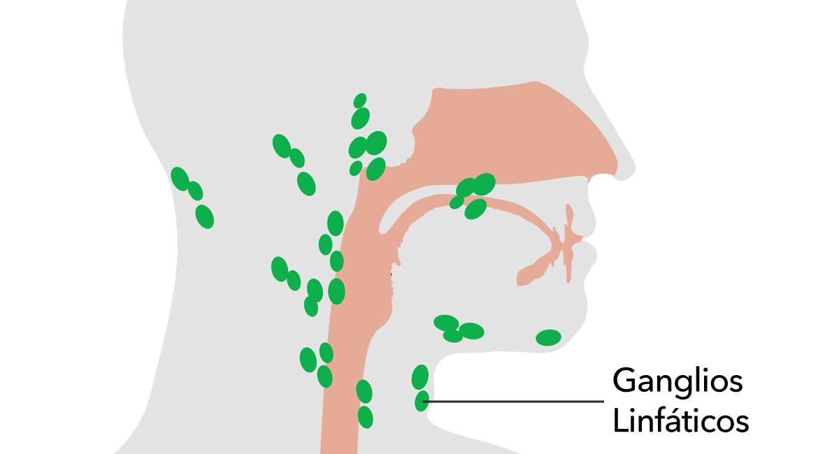 10 remedios caseros para tratar los ganglios linfáticos inflamados ...