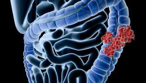 5 maneras eficaces de prevenir el cáncer colorrectal naturalmente