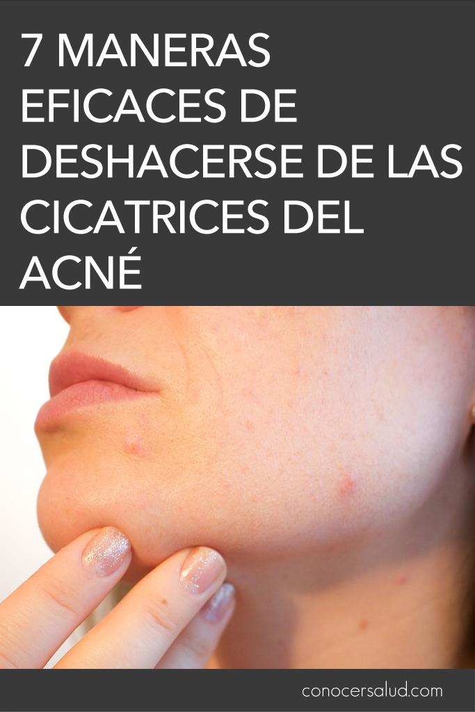 7 maneras eficaces de deshacerse de las cicatrices del acné