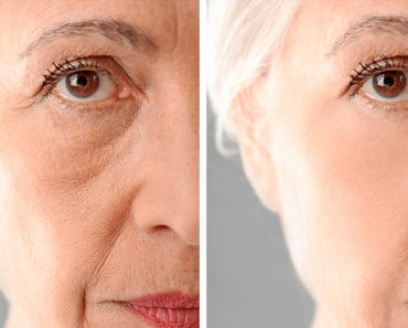 25 alimentos que hacen que las mujeres envejezcan más lentamente