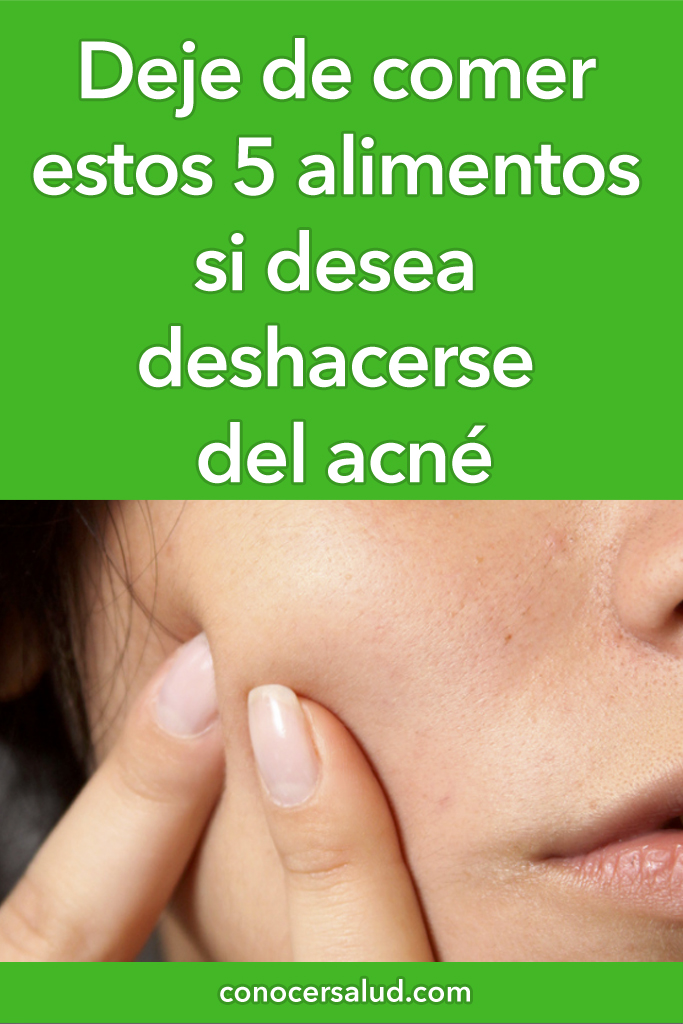 Deje de comer estos 5 alimentos si desea deshacerse del acné