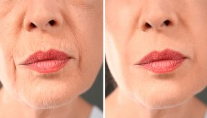 5 Ejercicios faciales que le harán envejecer más lentamente